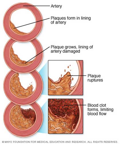 heart plaque diagram
